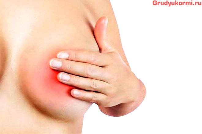 Боль в груди при кормлении